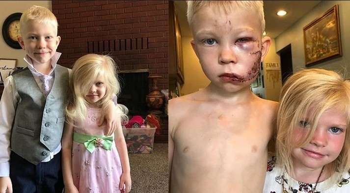 90 швів на обличчі: шестирічний хлопчик врятував сестру від нападу собаки (фото)